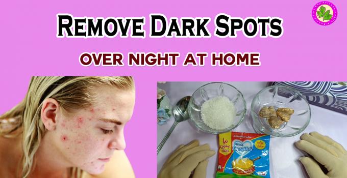 Fair Skin Home Remedies