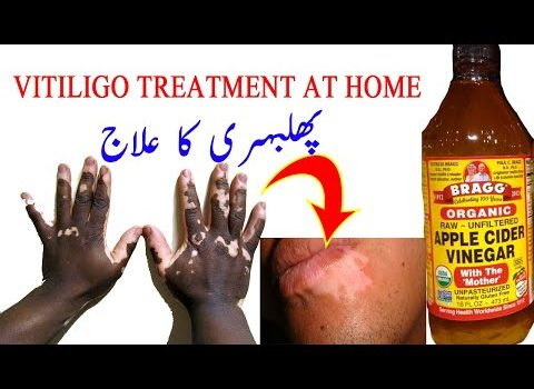 Phulbehri ka ilaj in urdu hindi - Face Par Se Bhi Remove Just Kalonji Se