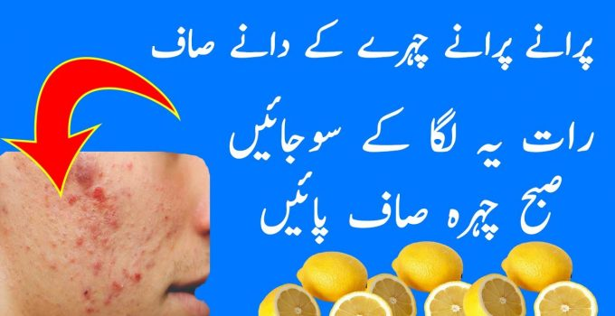 How to treat a deep, painful pimple - Dano Ka Ilaj Dar Cheni Se