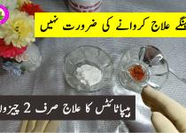 Hepatitis Ki Alamat Aur Ilaj