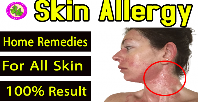 Skin Allergy Itching Treatment