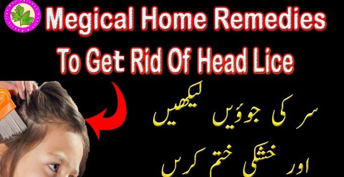 How To Get Rid Of Hair Lice In One Day - Sir Ki Jowon Ka Ilaj