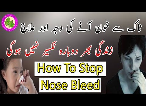 In This video i will tell you about Stop Nose Bleeding Fast - Naak Se Khon Kiyun Ata Hai - Naak Se Khon Ka Ilajaaaa