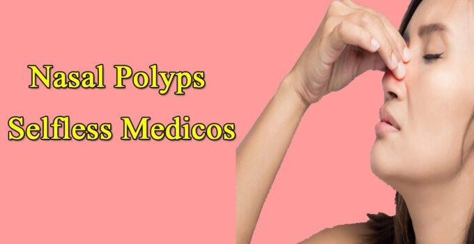 Nasal Polyps Selfless Medicos