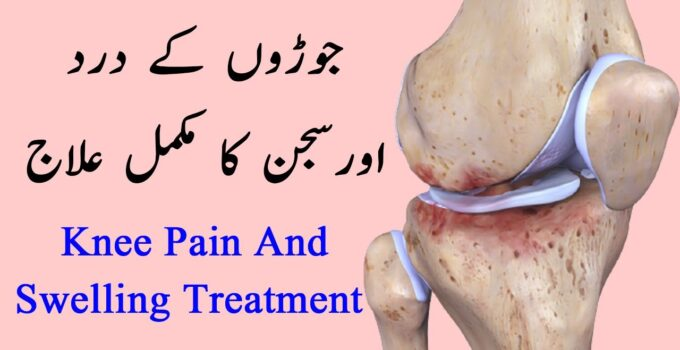 Knee Pain And Swelling Treatment