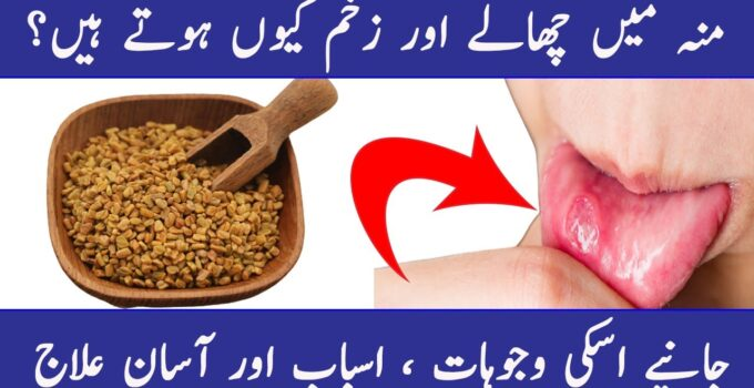 Mouth Infection Treatment