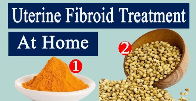 Treatment Of Uterine Fibroid