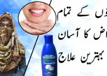 Tooth Problems Treatment